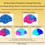 Preliminary Report of the First Large Scale Study of Energy Psychology with Brain Scans