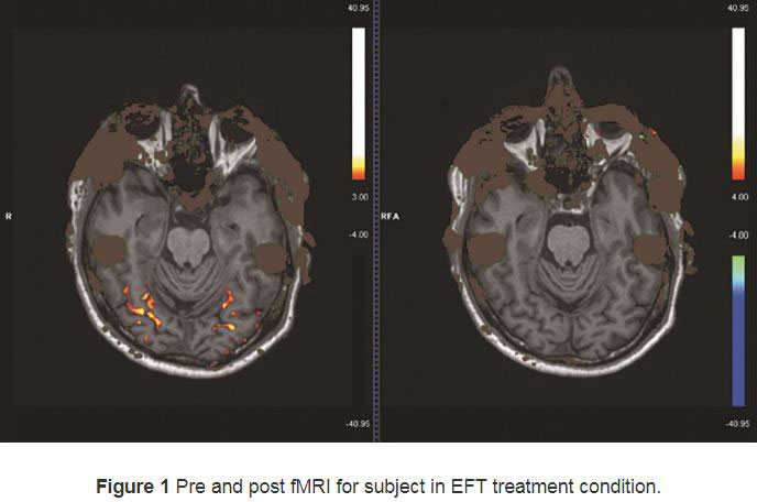 An fMRI scan showing effects of EFT