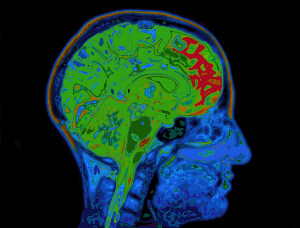 Frontal Cortex